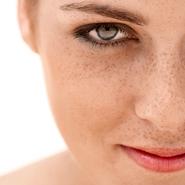 Hiperpigmentacije