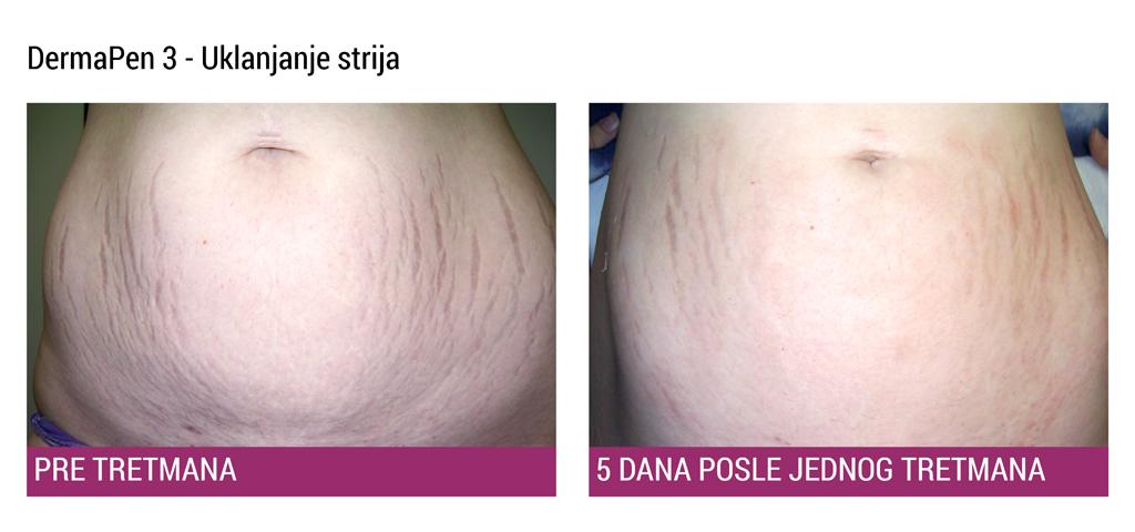 DermaPen 3 Strije