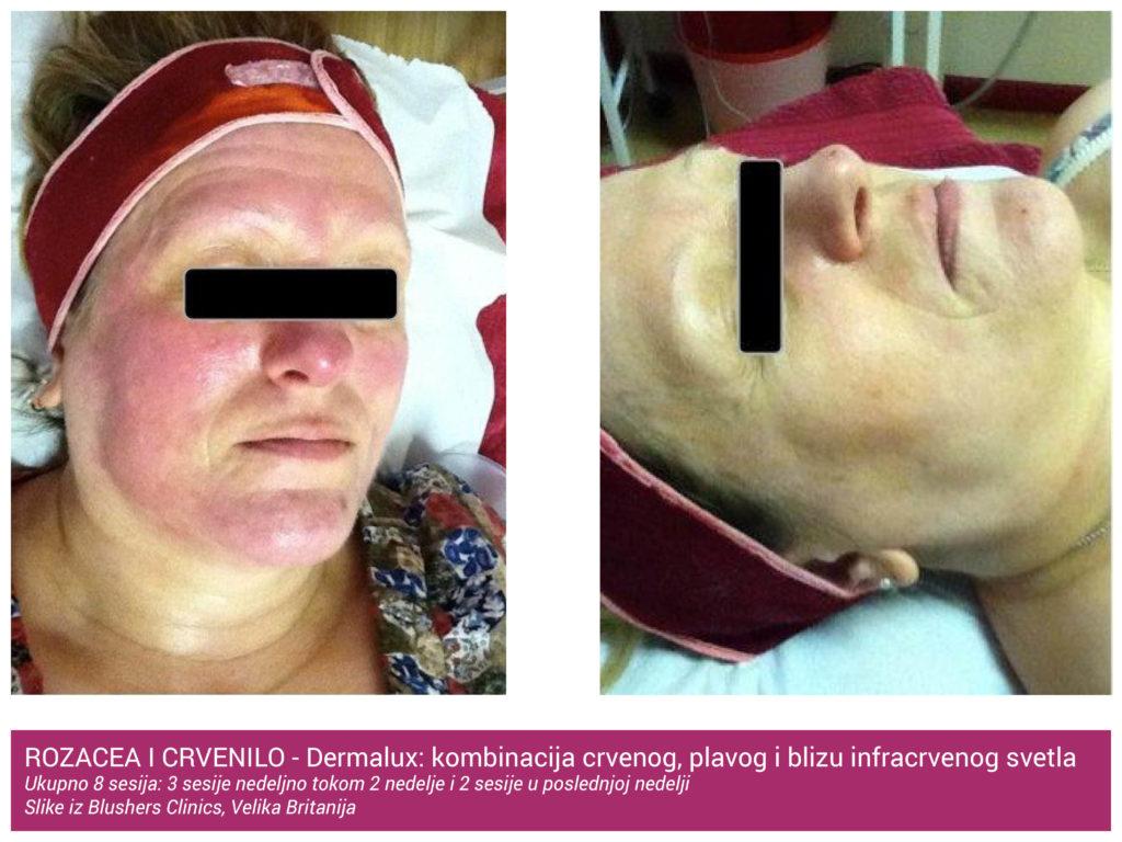 Rozacea i Crvenilo Tretman DermaLux TriWave